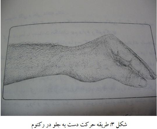 شکل 3: طریقه حرکت دست به جلو در رکتوم