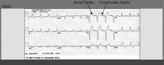 سیگنال قلبی ثبت شده در حضور پیس میکر دوحفره ای