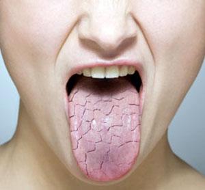 پزشكي : خشکی دهان