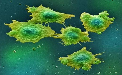 cancer cells - شکل گیری سلول های سرطانی