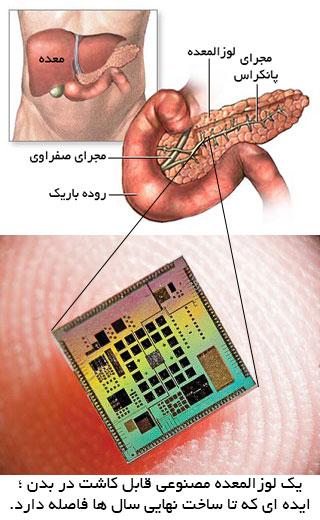 یک لوزالمعده مصنوعی قابل کاشت در بدن