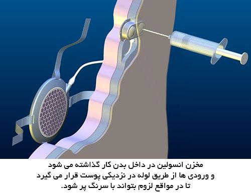 مخزن انسولین خودکار  قابل کاشت در بدن