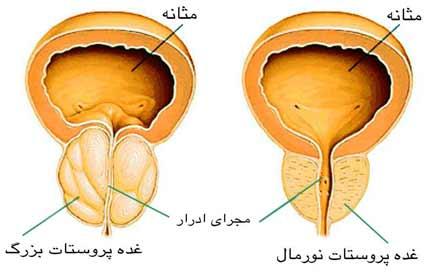 پروستاتیت (التهاب پروستات)