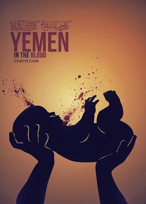 یمن.جنگ یمن.حملات جدید به یمن.کودکان بی خانمان یمن.عکس.عکس کودکان آسیب دیده یمن.عکس +18.حملات عربستان به یمن.عکس +18 یمن.تصاویر دردناک از بمباران یمن