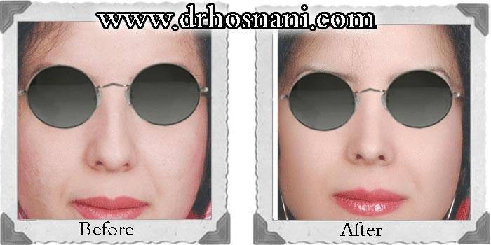 جراحی بینی - دکتر حسنانی