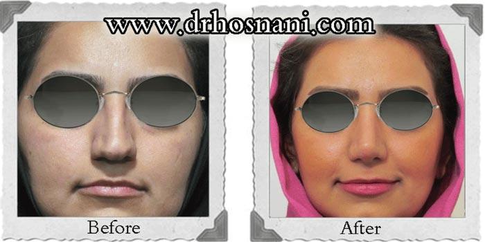 جراحی قلمی کردن بینی توسط دکتر حسنانی