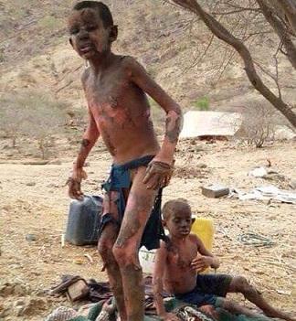 چرا عربستان کودکان یمنی را بمباران می کند؟