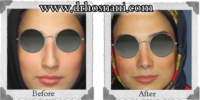 جراحی بینی دکتر حسنانی - بالا کشیدن نوک بینی - تراشیدن پل بینی