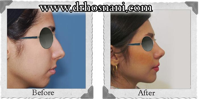جراحی بینی دکتر حسنانی - کوچک کردن بینی