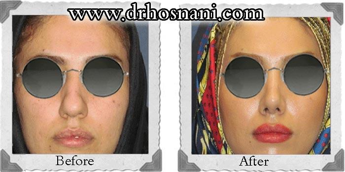 جراحی بینی دکتر حسنانی - جراحی بینی گوشتی مدل طبیعی - باریک کردن نوک بینی - برداشتن قوز بینی
