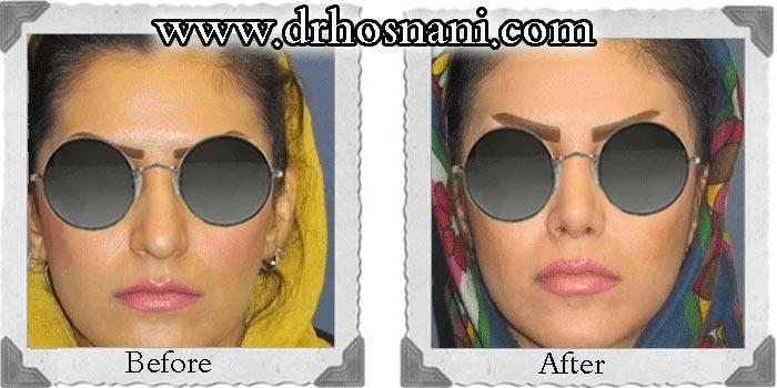 گالری جراحی بینی دکتر حسنانی - بینی نیمه فانتزی - نمونه جراحی بالا کشیدن نوک بینی و باریک سازی پل بینی
