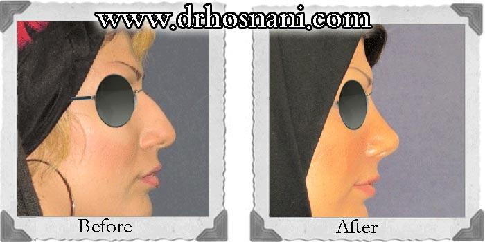 گالری جراحی بینی دکتر حسنانی - بینی نیمه فانتزی - نمونه جراحی بالا کشیدن نوک بینی و اصلاح قوز بینی
