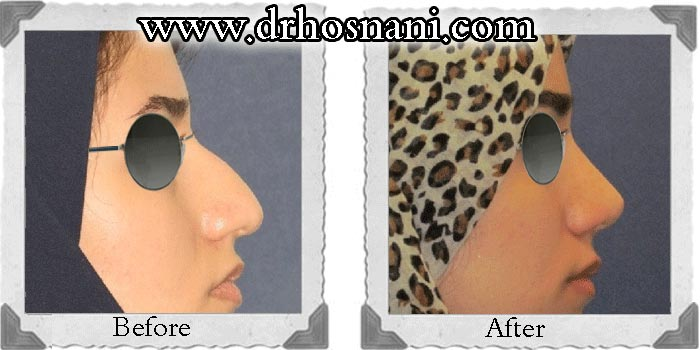 گالری جراحی بینی دکتر حسنانی - بینی غضروفی با پوست ضخیم - مدل نیمه فانتزی - نمونه جراحی بالا کشیدن نوک بینی و اصلاح قوز بینی
