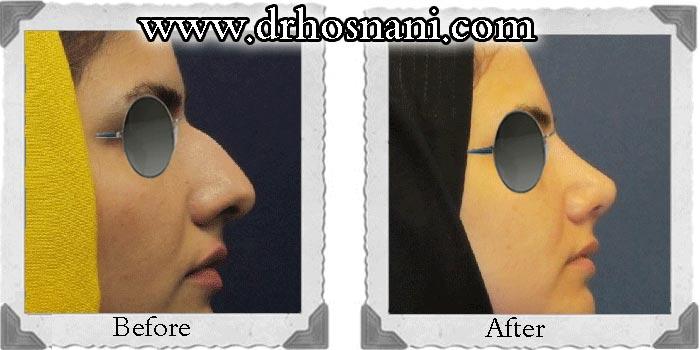 جراحی بینی غضروفی (استخوانی) - مدل نیمه فانتزی - عکس شماره 24 گالری جراحی بینی دکتر حسنانی