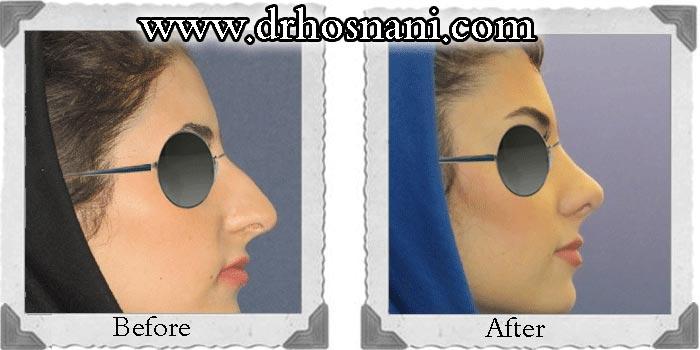 جراحی بینی دکتر حسنانی - جراحی بینی غضروفی (استخوانی) - مدل نیمه فانتزی - عکس شماره 25