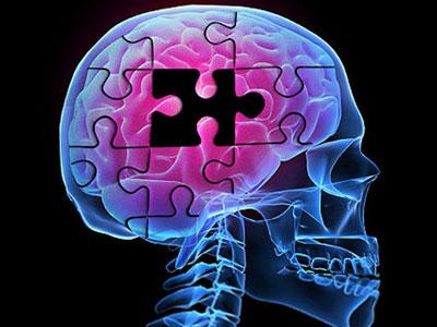 بیماری آلزایمر چیست؟ , سلامت و پزشکی