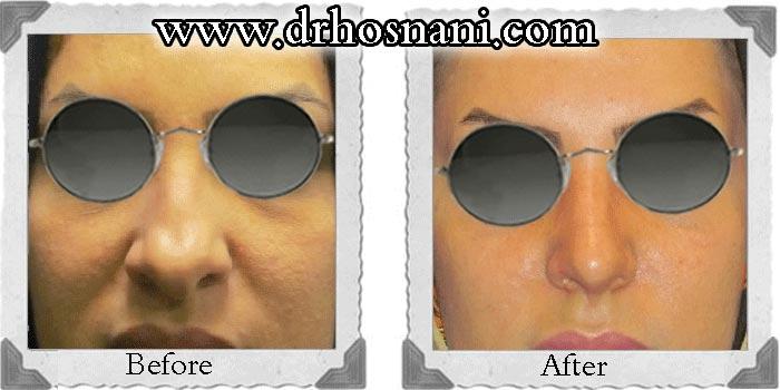 کوچک کردن پره های بینی