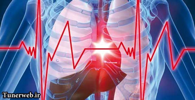 عوامل کمتر شناخته شده سکته قلبی را بهتر بشناسیم