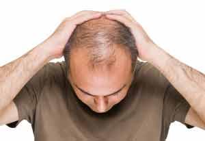 درمان ریزش مو , سلامت و پزشکی
