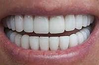 رنگ دندان های سالم همیشه سفید نیست ! , سلامت و پزشکی