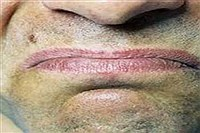 تلخی دهان را جدی بگیرید , سلامت و پزشکی