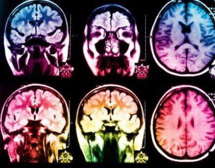مغز افراد دارای دید مثبت چه شکلی است؟ , علمی ودانستنی ها