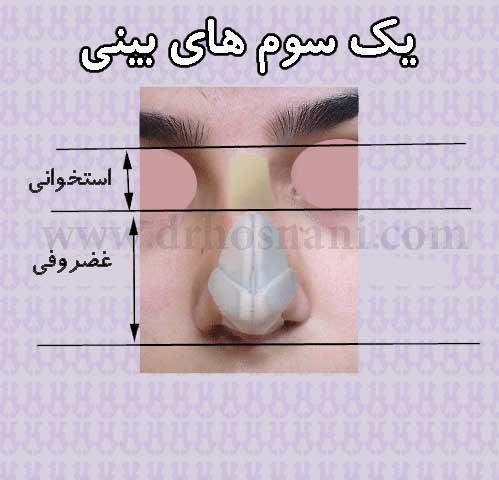 جراحی بینی دکتر حسنانی - یک سوم های بینی