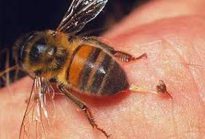 مرگ دختر خوزستانی به خاطر نیش زنبور , حوادث