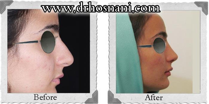 nose_surgery_118.jpg