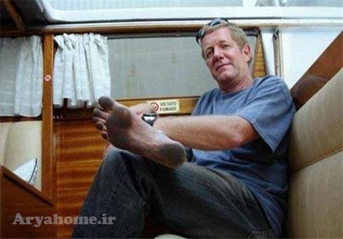 مردی که پاهایی مثل کفش دارد!! , جالب و خواندنی
