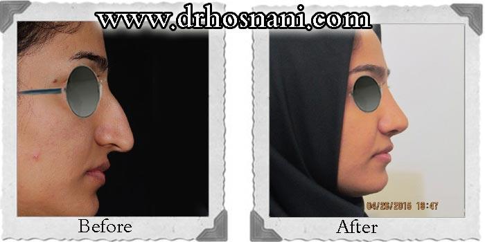 nose_surgery_119.jpg