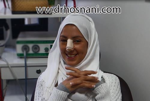 مشاوره عمل بینی با دکتر حسنانی - دوران نقاهت جراحی بینی