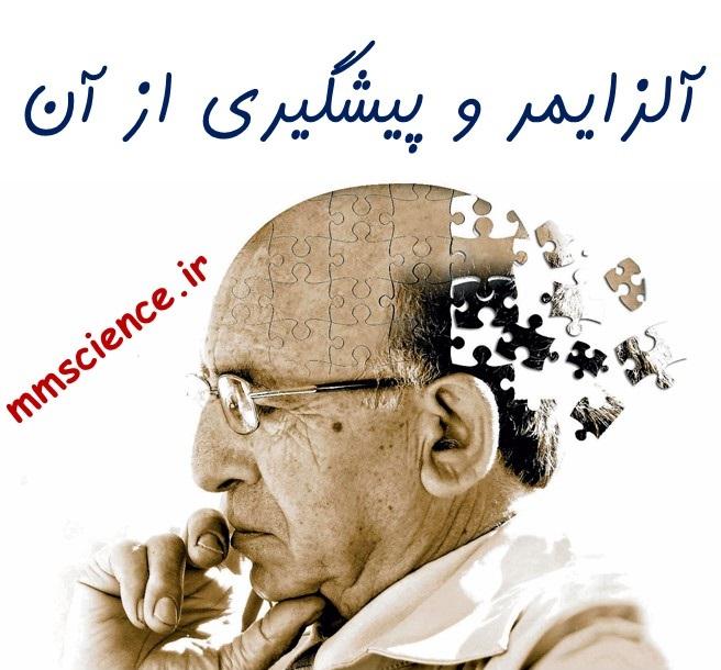 آلزایمر و پیشگیری از ان